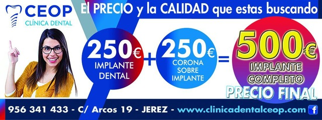 OFERTA : IMPLANTE DENTAL 250 EURO OFERTA - foto 2