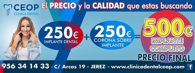 IMPLANTES DENTALES EN JEREZ CLINICA CEOP - foto 1