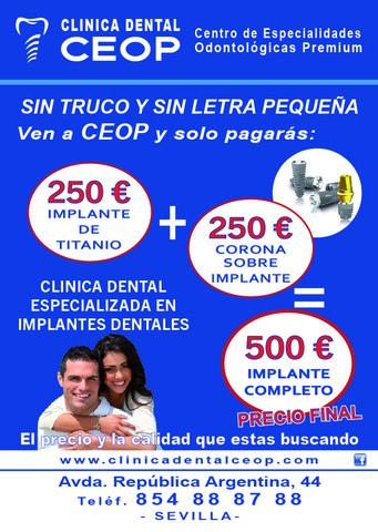 IMPLANTE 250 +CORONA 250 =500  EUROS - foto 3