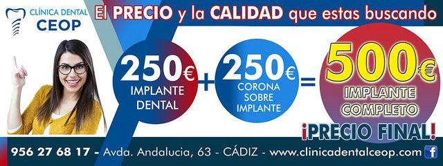 250  IMPLANTE DENTAL PRECIO IRRESISTIBLE - foto 2