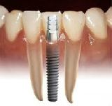 Implantes dentales garantizados - foto