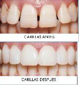 Dentista economico en Barcelona - foto