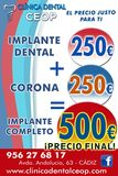250€ implante dental+250€ corona =500€ - foto