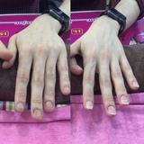 reconstruccion de uñas (hombre y mujer) - foto