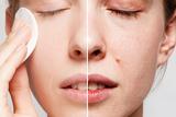 limpieza facial completa,depilacion ceja - foto