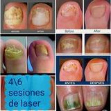 Elimina los hongos de tus uñas con laser - foto
