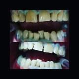 Clínica Dental Quart (Girona) - foto