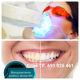 Blanqueamiento estético dental - foto