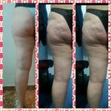 Tratamiento anticelulitico - foto