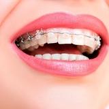 ortodoncia  .**699596022* - foto