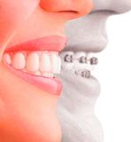 Ortodoncia precios econÓmicos - foto