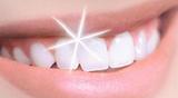Oferta Blanqueamiento dental + Limpieza - foto