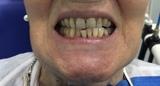 Blanqueamiento Dental - foto