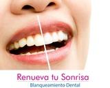 DiseÑo de sonrisa en colombia - foto