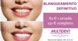 Blanqueamiento dental sevilla - foto