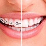 Ortodoncia Garantizada Y Económica!!! - foto