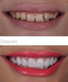Dentista bueno y economico - foto