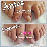 Reconstrucción uñas del pie. Unisex * - foto