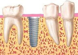 Dentista - foto