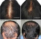 tratamiento para la alopecia españa - foto