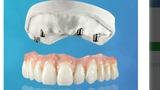 Reparación dentaduras. - foto