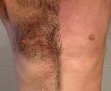 Depilación unisex - foto