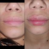 Beauty therapist mobile. - foto