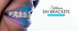 Ortodoncia minimamente invasiva - foto