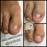 Reconstrucción uñas del pie Masculina - foto