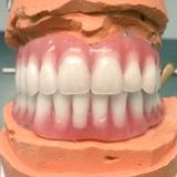 reparacion urgentes de prótesis Dentales - foto