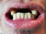 Prótesis dentales desde 170 euros - foto