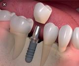 Implante dental Economico y Garantizado - foto