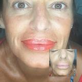 Labios hermoso con Micropigmentacion - foto