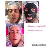 Limpieza facial y profunda 35 euros - foto