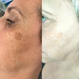 EliminaciÓn manchas faciales y verruga - foto