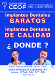 Implantes dentales en sevilla y baratos - foto