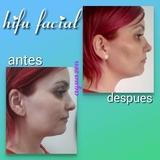 hifu facial - foto