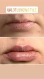 Aumento de los labios con ácido hialuron - foto