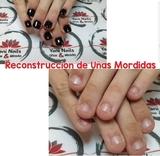 Uñas Mordidas Vigo 45e - foto