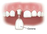 Odontologo implantologo - foto