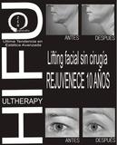 Hifu   Ultherapy - foto