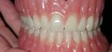 Se hacen protesis dental REMOVIBLE - foto