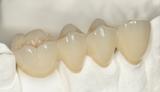 prótesis dentales removibles desde 170 - foto