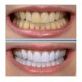 Si fumas, para que vas al Dentista? - foto