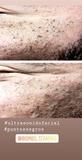 Higiene facial con ultrasonido - foto