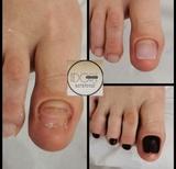 Estética del pie. Reconstrucción uñas - foto