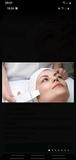 Tratamiento rejuvenecimiento facial - foto