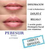 Aumento o perfilado de labios en Sevilla - foto