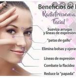 Radiofrecuencia  facial - foto