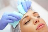 Limpieza facial con extraccion de poros - foto